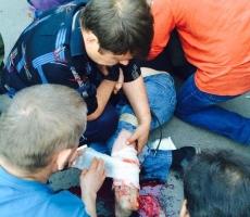 В Одессу привезли раненых нацгвардейцев Украины