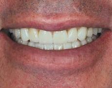 Беременность и лечение зубов