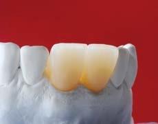 Стоматология Jiva Dent – гарантия вашего здоровья и красоты