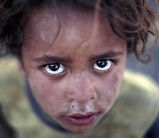 Жителей Йемена охватит страшный голод и халера