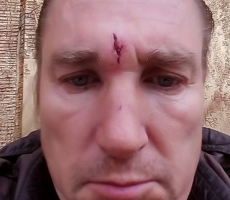 Лидер украинского СПАСА Эдуард Коваленко избит военными