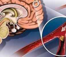 Народное средство, которое улучшит мозговое кровообращение